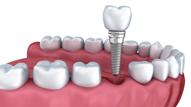 What Makes Dental Implants so Beneficial?
